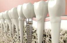 Implante Dentário em Ipanema