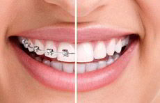 ortodontia-aparelho-dental-ipanema-dentista-guilherme-rothier-230