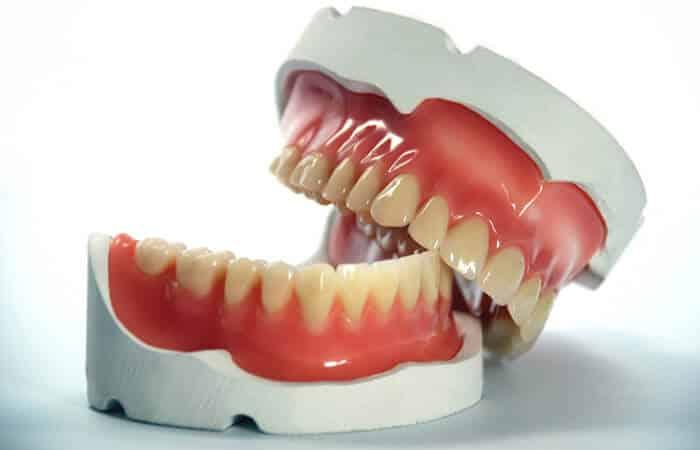 protese-dentaria-ipanema-dentista-guilherme-rothier-700