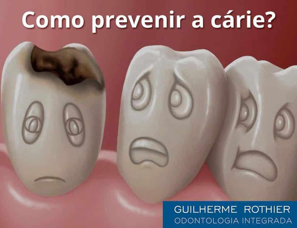como-prevenir-carie-dentaria-dentista-ipanema-guilherme-rothier