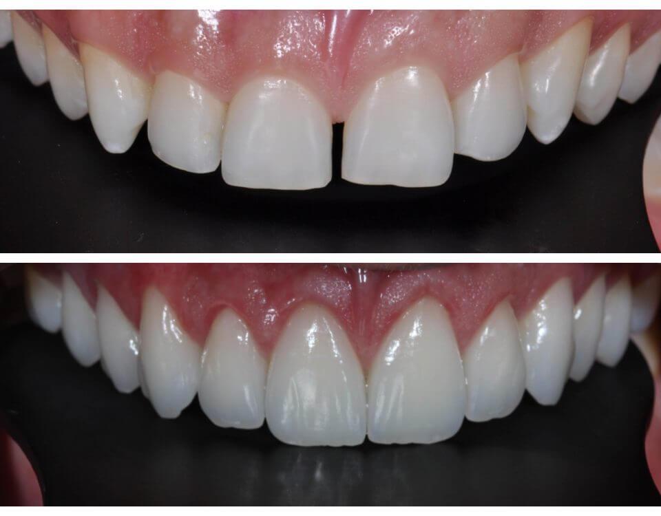 Lente de Contato Dental p/ Correção de Espaço Entre os Dentes - Diastema