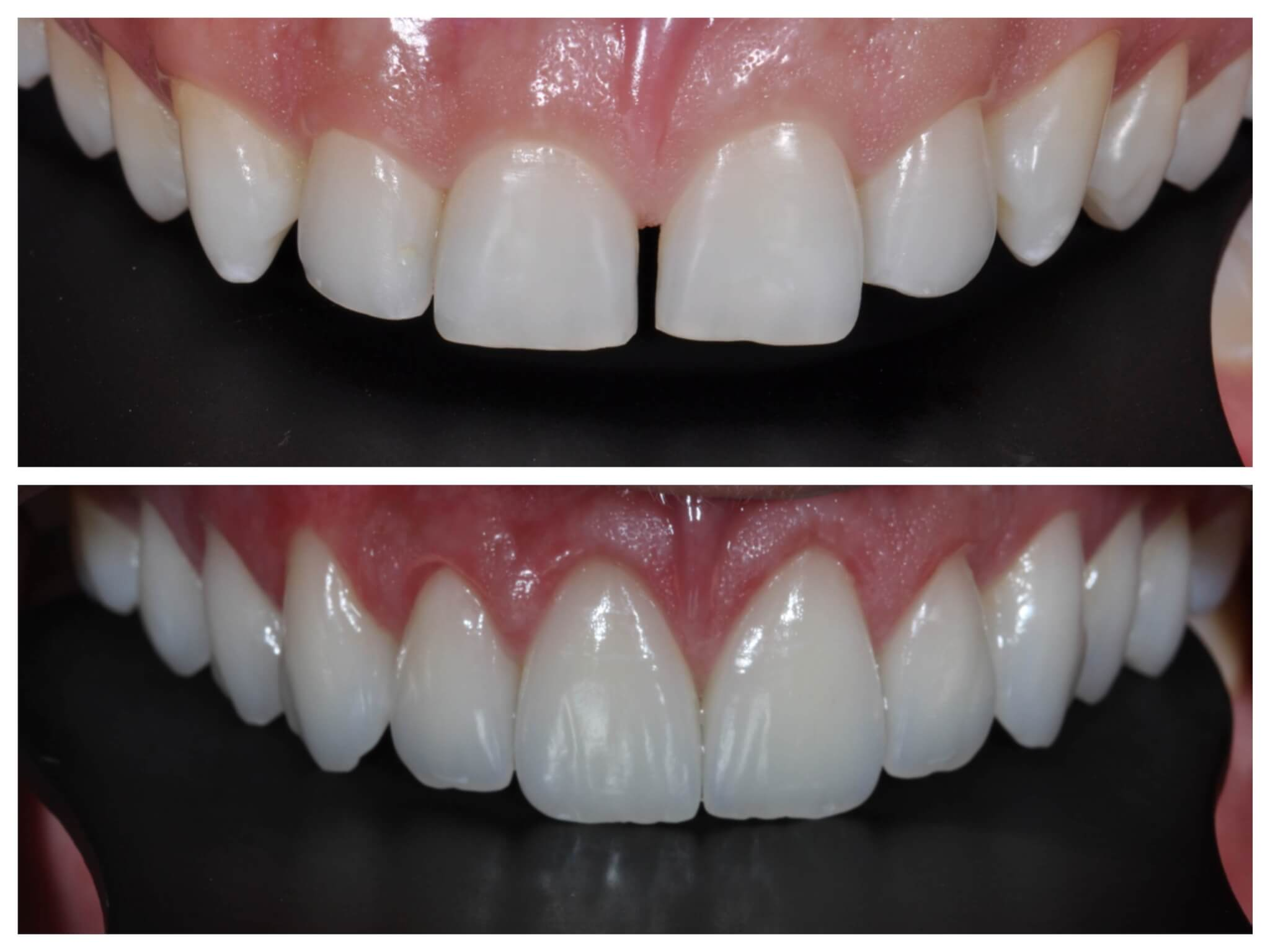 be392ebc4 Qual a diferença entre lente de contato dental e faceta em porcelana