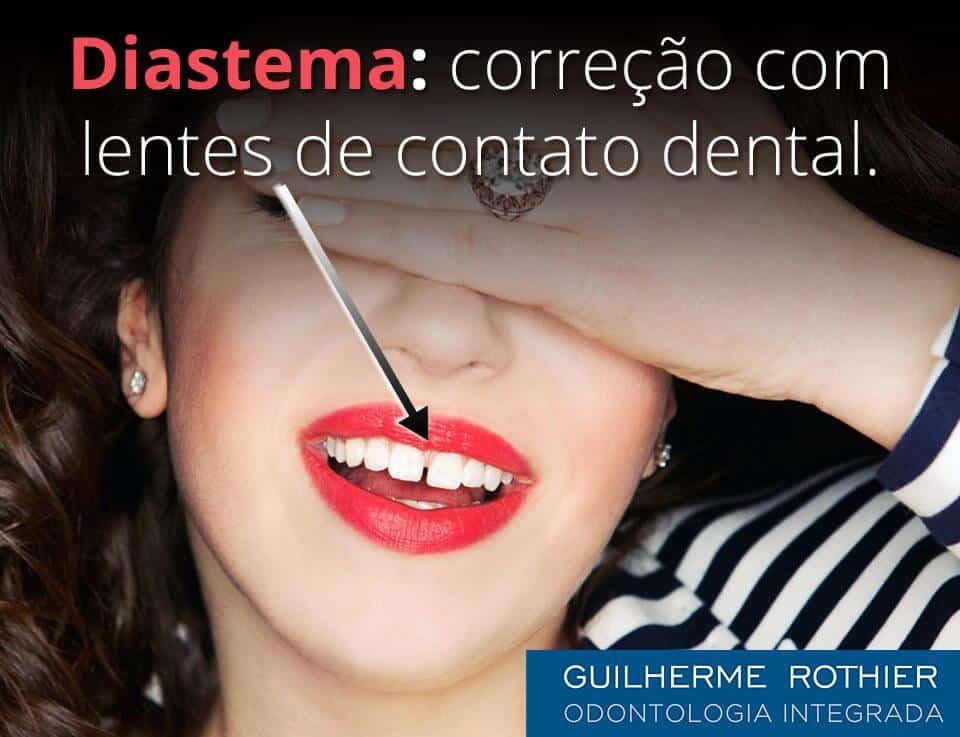 lente-de-contato-dental-corrigir-buraco-entre-dentes-diastema-ipanema
