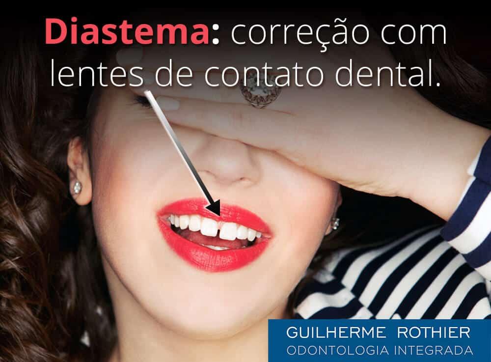 404bfc6fb2 Lente de Contato Dental p/ Correção de Espaço Entre os Dentes - Diastema